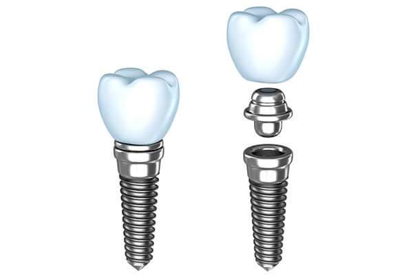 Single Tooth Dental Implants illustration